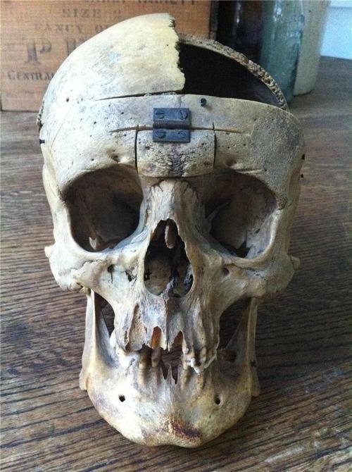 Real human skull.