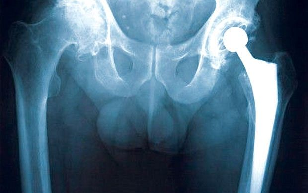 Health warning over hip implants manufactured incorrectly