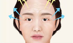 tissue dissection for face lifting