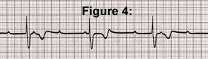 EKG Rhythm Practice Quiz for AV Heart Blocks | 1st Degree, 2nd Degree Types, & 3rd Degree Blocks