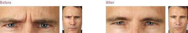 A man before and after New York Botox treatment between the eyebrows (glabella).