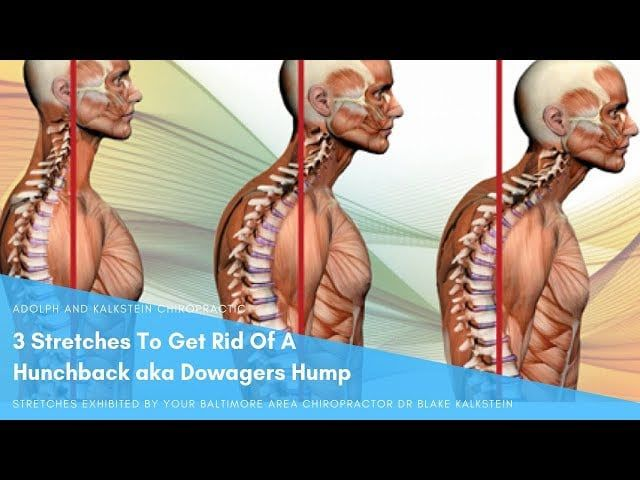 43+ How to get rid of rounded back trends