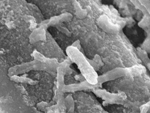 Microbes, in the toxin-monitoring fuel cell
