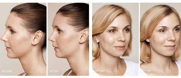 #acne #acnespots #skin #health #beauty #trend #fashion #skincare #healthcare #arganlife #arganoil
