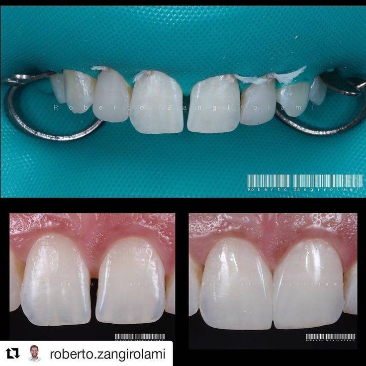 #rubberdamology @roberto.zangirolami・・・Fechamento de Diastema (espaço entre os dentes) e ajuste incisal com resina composta. Diastema Closure (Space between the teeth) and incisal adjustment with composite resin