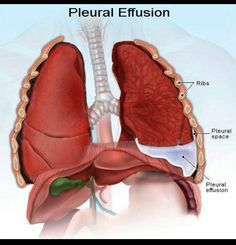 Pleural Effusion Normal level of pleural fluid is 5-10 ml and can be detected in the following investigations with the respective amounts: X-ray chest PA view - 200ml X-ray chest Lateral view - 100ml Ultrasound chest - 50ml CT scan - 25ml