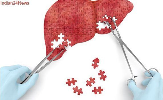 Cases of hepatitis B and C hit 325 million: WHO