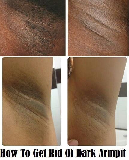 black pore strips instructions