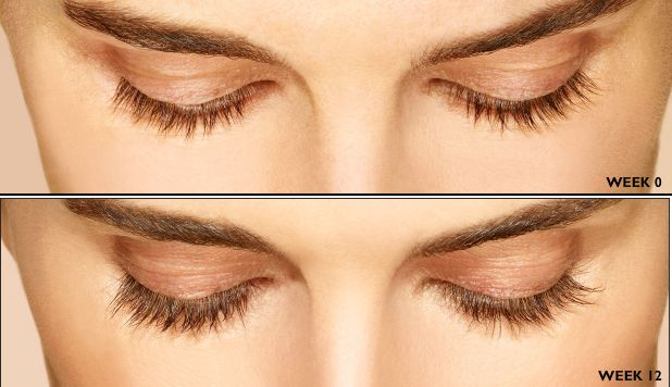 Eyelashes are a vital part of your eye. They grow from the tips of the eyelids. Long eyelashes make an attractive look.     That is why a...