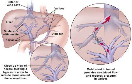 transjugular intrahepatic portosystemic shunt (tips) - Google Search