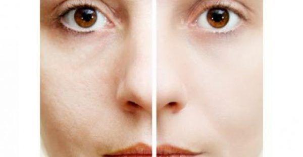 Σπιτική συνταγή για να εξαλείψετε τις ρυτίδες. Μια άκρως αποτελεσματική και φυσική λύση για να σφίξετε το δέρμα σας και να δώσετε μια νεανική εμφάνιση, είν