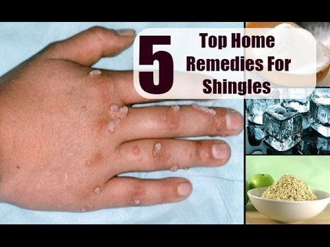 shingles treatment with home remedies