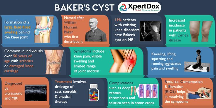 A Baker's cyst is a fluid-filled cyst that causes a bulge and a feeling of tightness behind your knee.