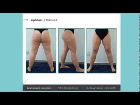 Lipödem-Studie: 97% der Patientinnen nach OP geheilt