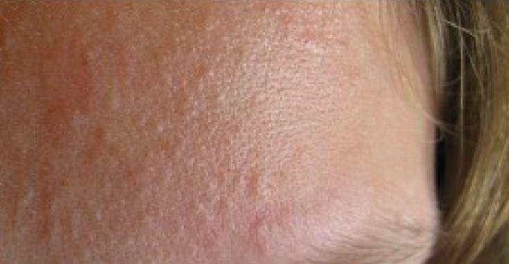 2 recettes naturelles pour éliminer les micro-kystes noté 3.31 - 32 votes Votre peau est granuleuse, tachetée de micro-kystes que vous n'arrivez pas à éliminer? Votre visage n'est jamais lisse et votre meilleur allié reste le maquillage? Après de longues heures de recherches, grand-mère a trouvé 2 recettes naturelles pour faire la guerre aux micro-kystes....