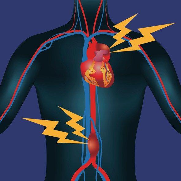 Actos upper left abdominal pain