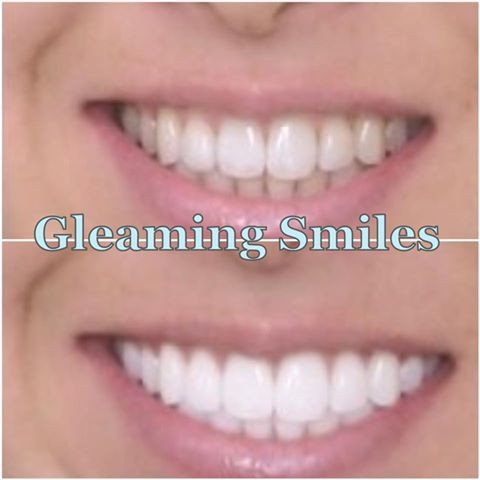 Gleaming Smiles - Teeth Whitening: Light Accelerated Diamond Session.  http://www.gleamingsmiles.com.au