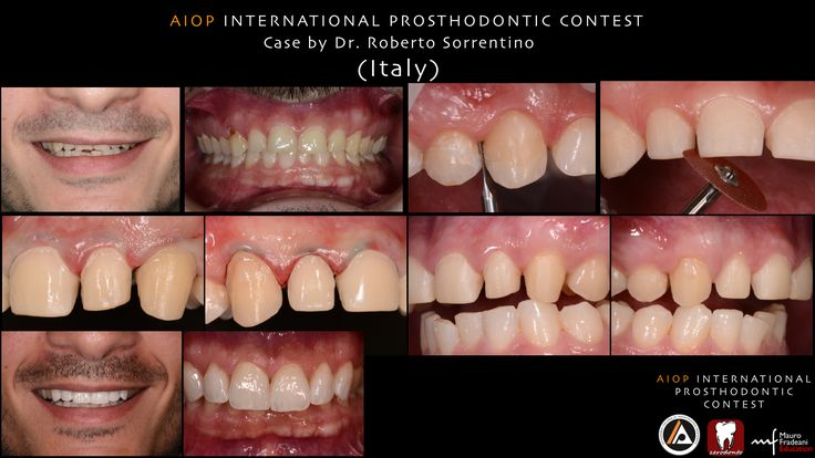 Case by Roberto Sorrentino, Italy. A 28-year old male patient presented with functional and esthetic concerns due to the severe wear of the incisal margins of the maxillary incisors; moreover a cervical decay of tooth 13 was noticed. The patient was completely unsatisfacted of his smile, because at rest the teeth were not visible and an inverse incisal curve was evident while smiling.  more on: https://www.facebook.com/media/set/?set=a.10152813323218970.1073741923.134992723969&type=1