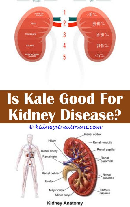 Kidney Stones Prevention Kidney Disease Cure Chronic Kidney