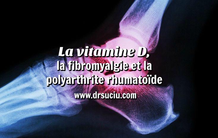 Photo drsuciu La vitamine D,  la fibromyalgie et la polyarthrite rhumatoïde