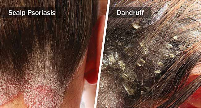 Webmd Explains The Differences Between Dandruff And Scalp Psoriasis Including Symptoms Diagno Scalp Psoriasis Scalp Psoriasis Treatment Dry Scalp Vs Dandruff