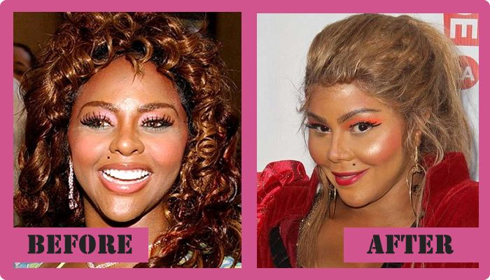 Lil Kim Plastic Surgery before and after Lil Kim Plastic Surgery #Lilkimplasticsurgery   #Lilkim   #gossipmagazines