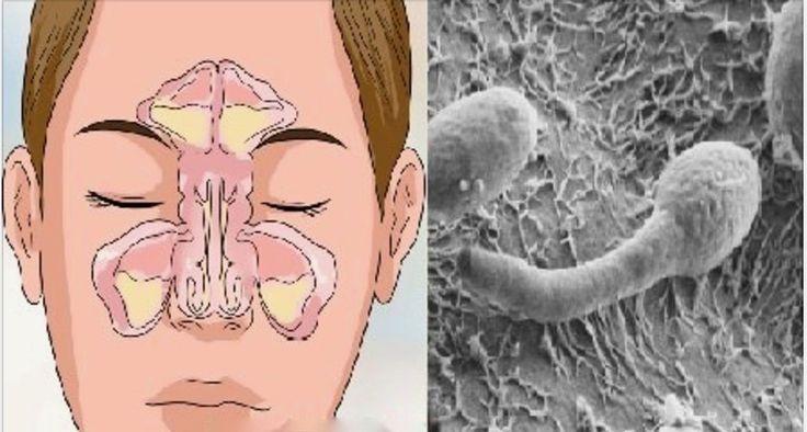 Nariz entupido, rinite ou sinusite? Seu problema está no intestino - saiba como resolver! | Cura pela Natureza