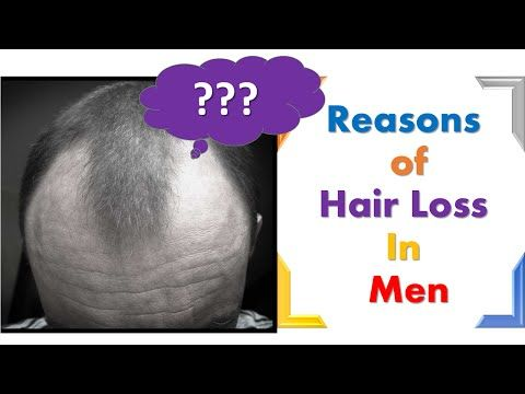 Causes of hair fall treatment for men Baldness Alopecia -  How To Stop Hair Loss And Regrow It The Natural Way! CLICK HERE! #hair #hairloss #hairlosswomen #hairtreatment Causes of hair fall treatment for men Baldness Alopecia Hair growth are explained in this video.  People asks how to stop hair loss or how to stop hair fall. Now a days, Hair regrowth... - #HairLoss