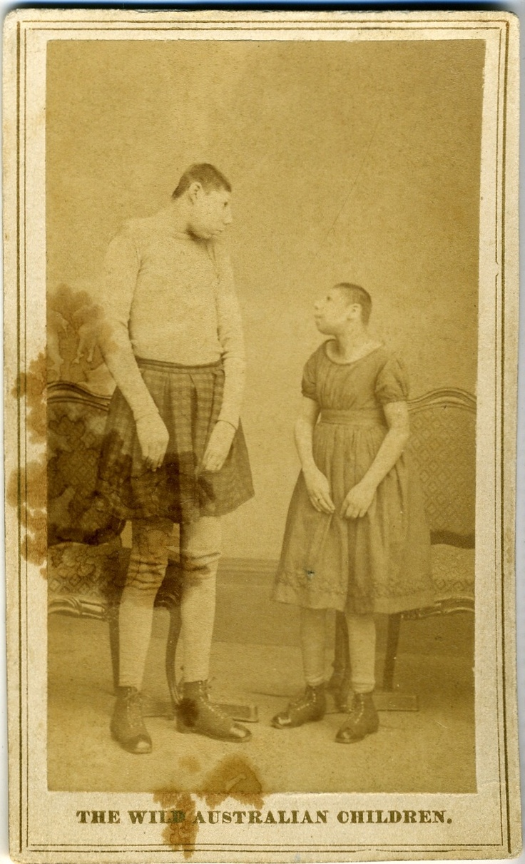 """Albumen photograph carte de visite of a circus side show. The two children's heads are microcephalic, and their mis-shapen skulls are somehow deemed as """"primitive"""" and therefore """"Australian"""". They were most likely first exhibited at P.T. Barnum's Circus/Museum. According to Barnum's official museum booklet, the children were exhibited as members of """"a distinct race hitherto unknown to civilization"""" (c. 1869)"""