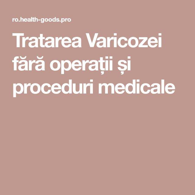 Tratarea Varicozei fără operații și proceduri medicale