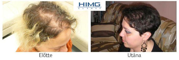 Hajbeültetés eredmények, hajbeültetés előtt után képek, fotók