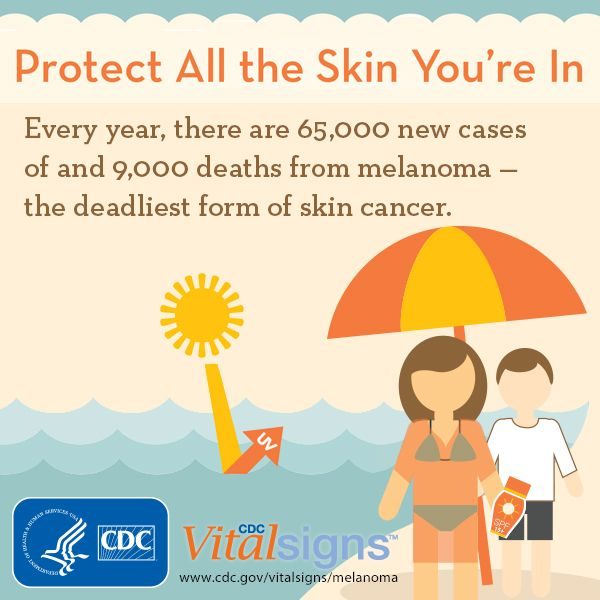skin cancer a p case study Tip of the iceberg: a skin cancer case study by anand d patel md a 46-year-old woman who just moved to the us from canada with her husband started noticing a rough patch on her nose that would not go away.