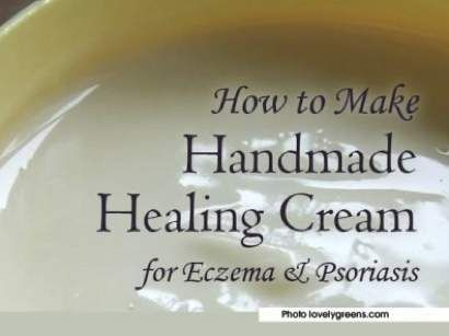 DIY Neem Cream For Eczema And Psoriasis...http://homestead-and-survival.com/diy-neem-cream-for-eczema-and-psoriasis/