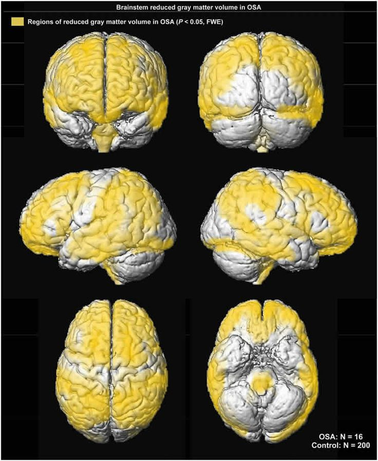 Untreated Sleep Apnea in Children Can Harm Brain Cells Tied to Cognition and Mood