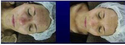 RegimA before& After