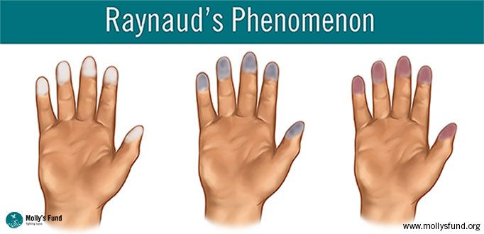 3-Steps-of-Raynauds-Featured I was diagnosed with this a few years ago.  Here is some interesting facts.