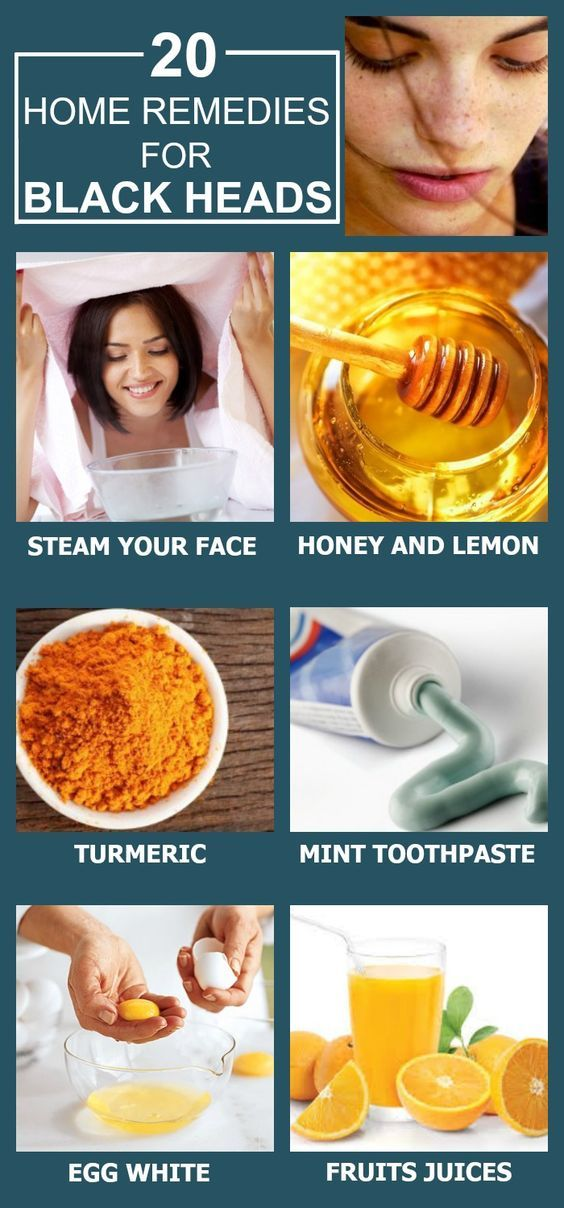 We all hate blackheads and erasing them can be such a pain. Squeezing them out can all be so overwhelming! Here are 18 home remedies for ...