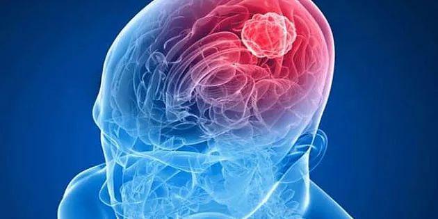 Kanser olduğunuzdan süphelenildiği zaman doktorunuz tarafından reçete edilen testlerden biri de Tümör belirteçleri (Tumor Markers)'dır. Bu belirteçler: AFP, CE