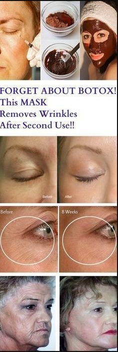 Forget about Botox, this Mask Removes Wrinkles after Second Use – Gust Of Wind~