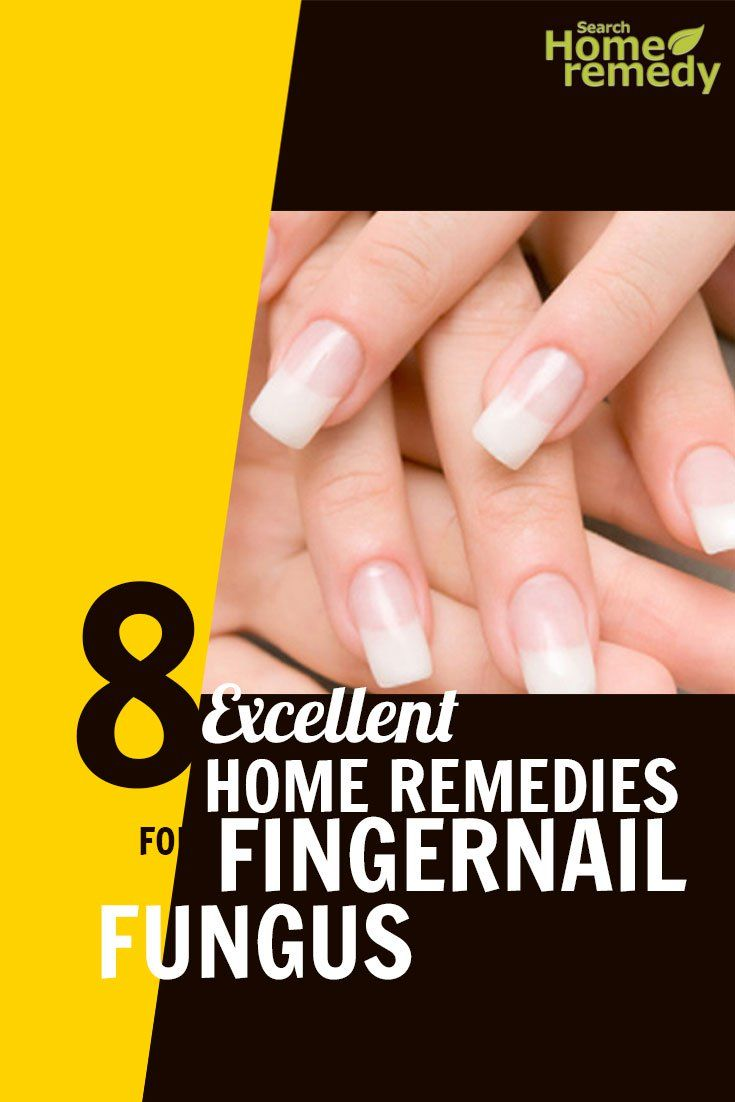 how to get rid of fingernail fungus home remedies