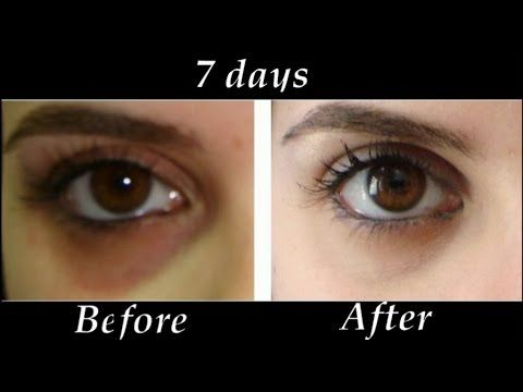 How to Remove Under eye Dark Circles in 7 days | DIY Dark Circle Treatment - YouTube