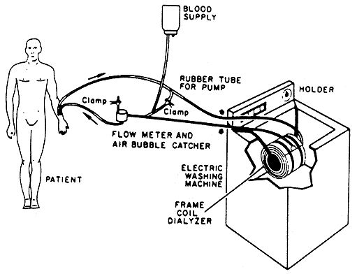 what does a dialysis machine look like