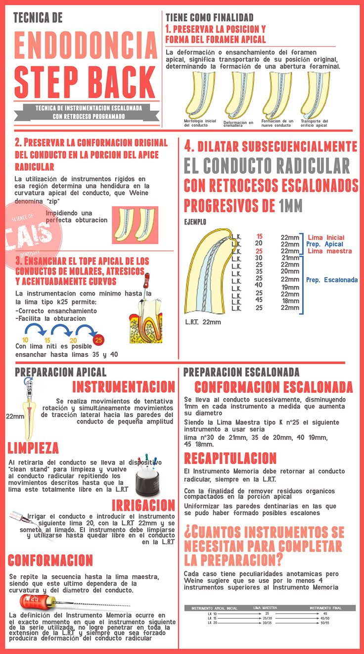 SIGUENOS: SCIENCE OF DENTISTRY https://www.facebook.com/ScienceofDentistry/ ENDODONCIA STEP BACK