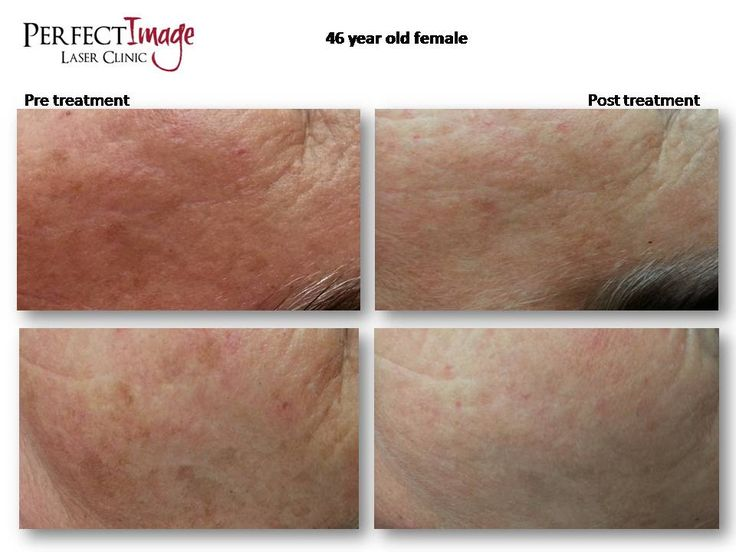 Pre and post images of IPL skin rejuvenation for pigmentation issues and Montaser Cosemeceuticals skin care.