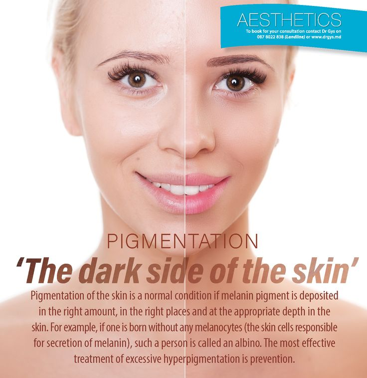 Pigmentation: 'The dark side of of the skin' Pigmentation of the skin is a normal condition if melanin pigment is deposited in the right amount, in the right places and at the appropriate depth in the skin. For example, if one is born without any melanocytes (the #skin cells responsible for secretion of melanin), such a person is called an albino. The most effective treatment of excessive #hyperpigmentation is prevention.