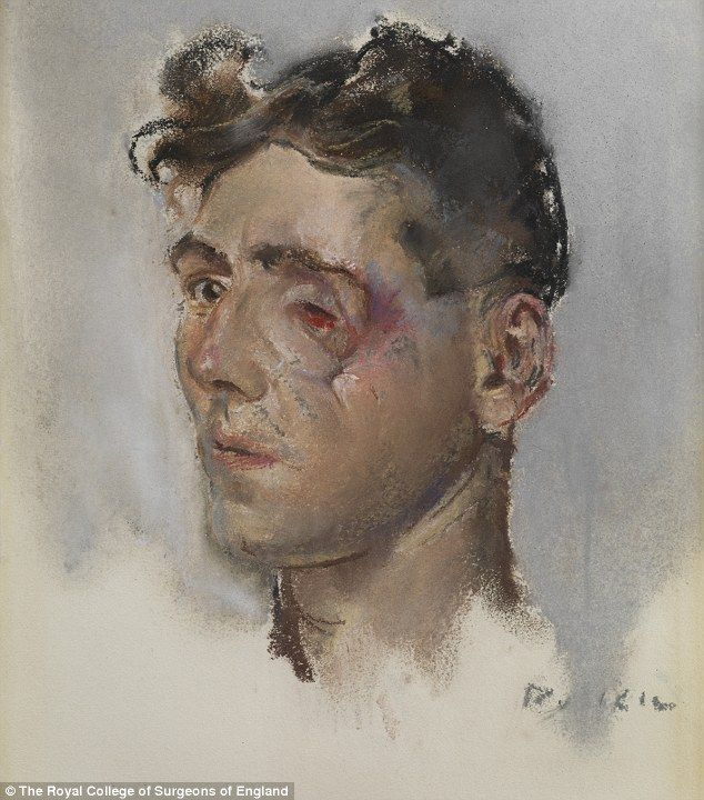 Victim of war: Soldier with facial wounds by Henry Tonks (1916-18)