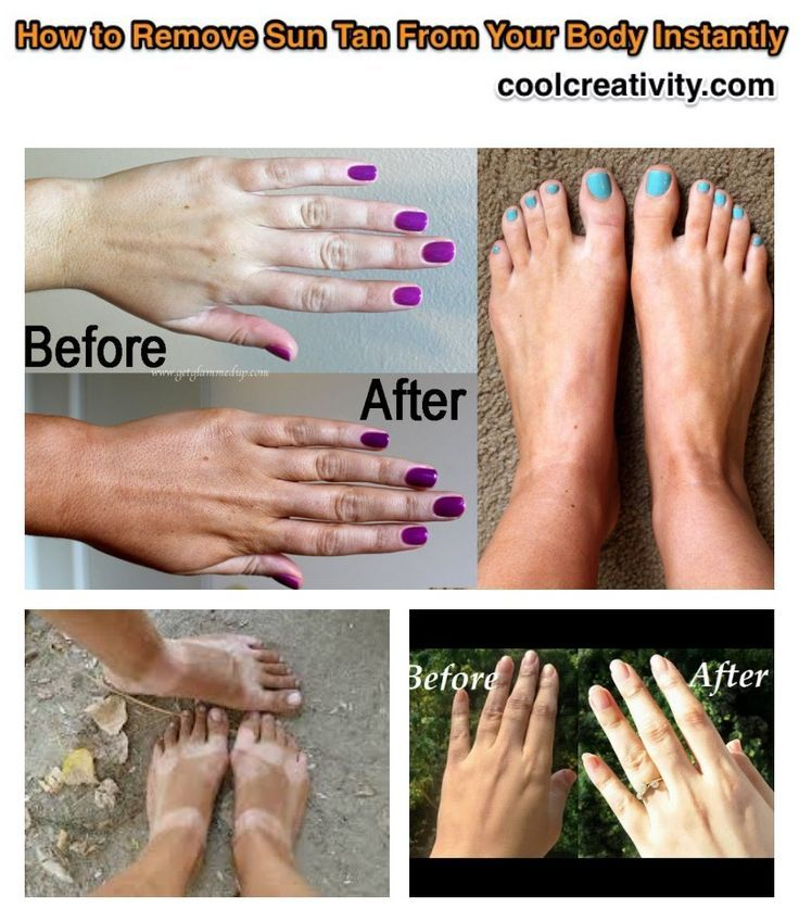 How to Remove Sun Tan From Your Body Instantly – #body #Instantly #remove #sun #…