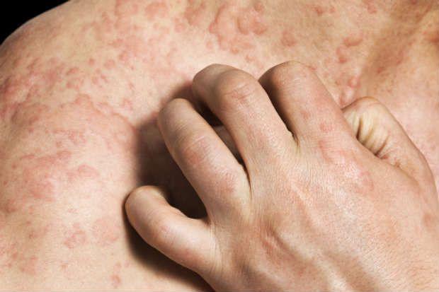 A urticária (prurido) são vergões vermelhos na pele normalmente em função de uma reação alérgica. Veja as causas, sintomas e tratamentos da urticária.