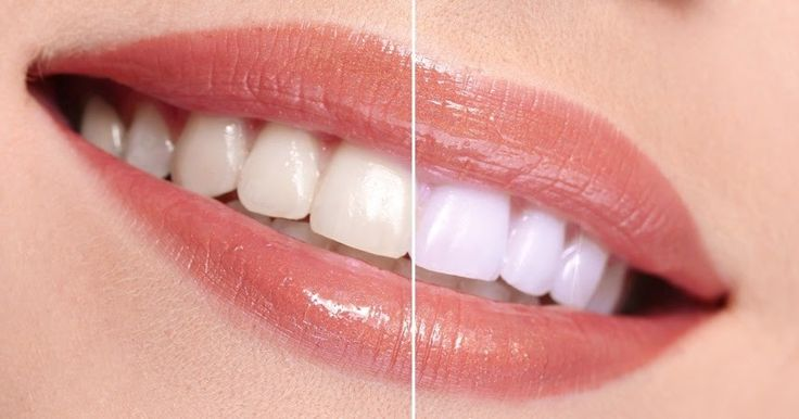 If you are interested in having a teeth whitening procedure and looking for the best and affordable dental expert option in Melbourne then you can consult Smile Creation dental services for best dental care service. #TeethWhitening