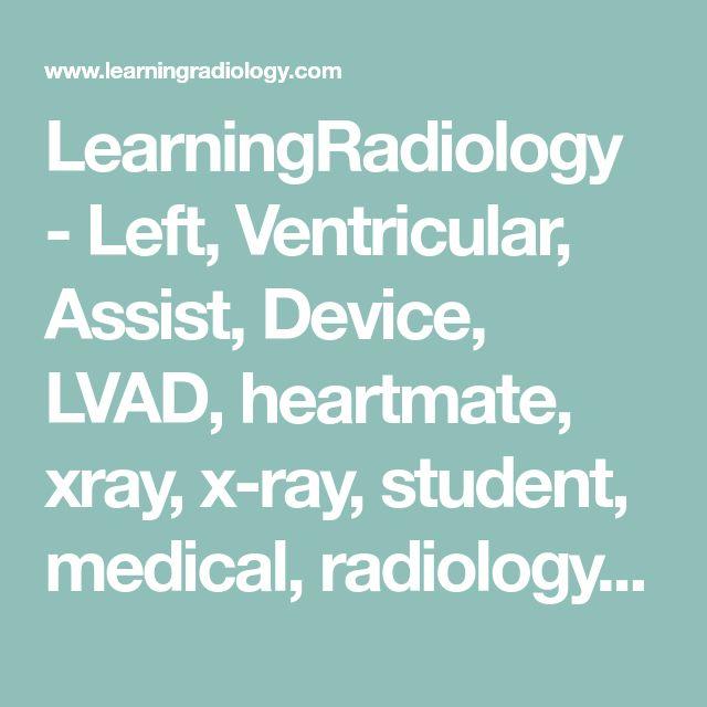 18 best LVAD Vest images on Pinterest | Vest, Med school and Medical